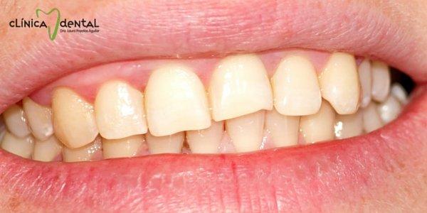 piorrea o periodontitis
