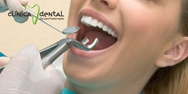 ¿Las muelas del juicio pueden torcer los dientes?