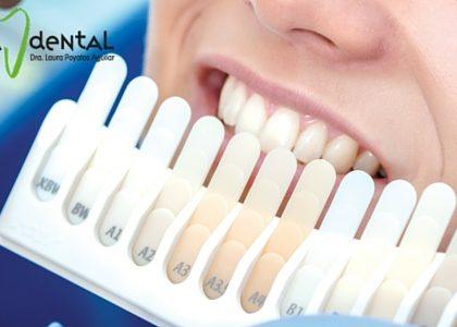 Carillas dentales ¿Qué son, para qué sirven y de qué tipo existen?