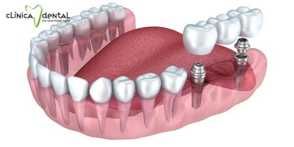 Ilustración de un implante dental