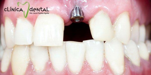 ¿son dolorosos los implantes dentales? Dentista Guadix