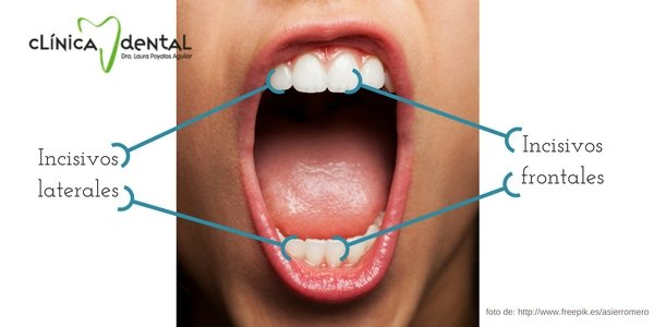 imagen gráfica indicando cuáles son los incisivos frontales y laterales