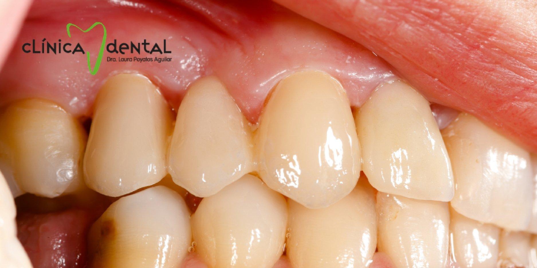 ¿Dónde puedes denunciar si crees haber sido víctima de fraude en servicios dentales?