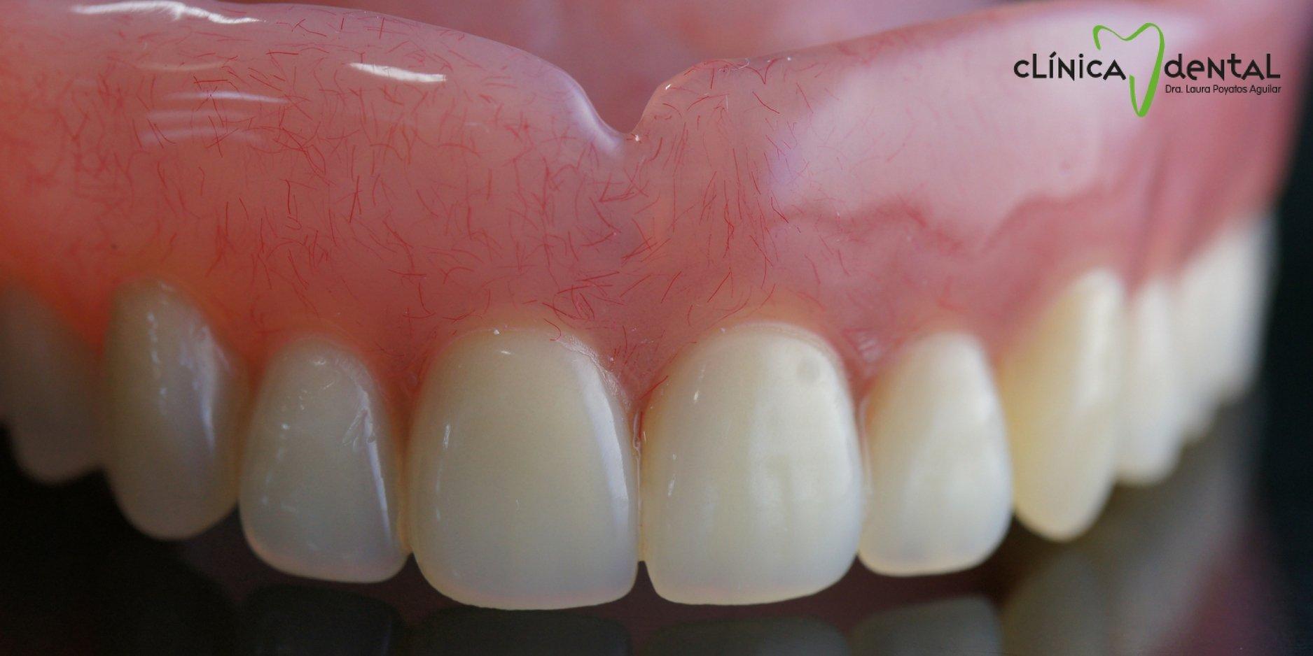 ¿Es bueno el uso del pegamento para prótesis dentales?