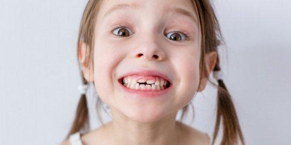 niña sonrisa dientes de leche