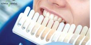 tonos blanqueamiento dental casero