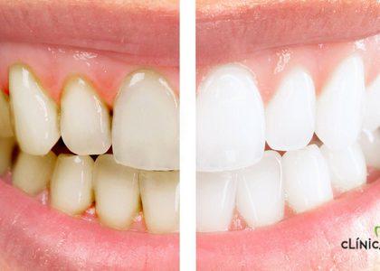 ¿Es bueno hacerse un blanqueamiento dental casero?