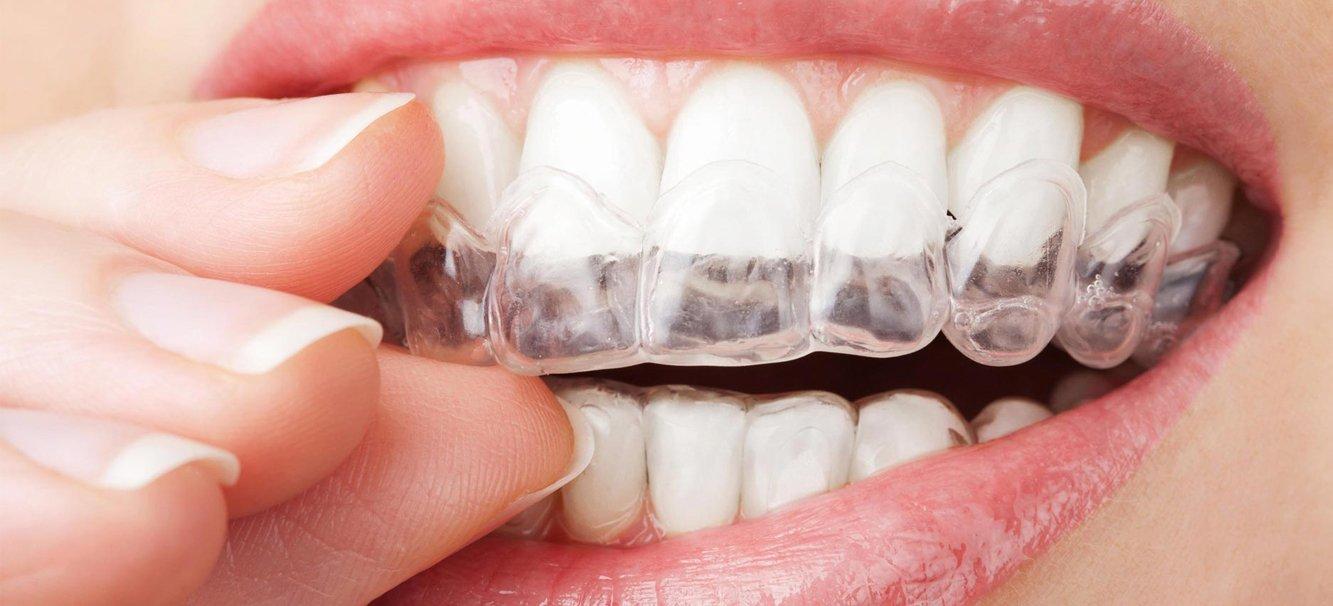 ¿La ortodoncia invisible funciona?