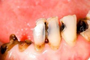 foto complicaciones de las extracciones dentales