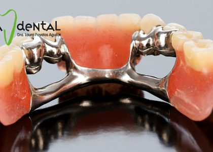 ¿Qué tipos de prótesis dentales existen?