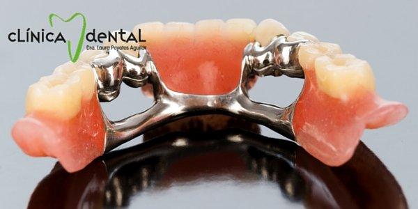 imagen portada tipos de prótesis dentales