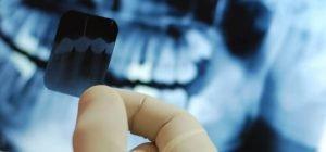 imagen tipos de radiografías dentales post