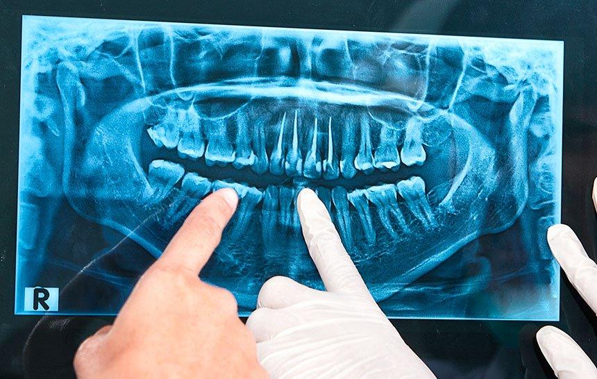 ¿Qué tipos de radiografías dentales hay?