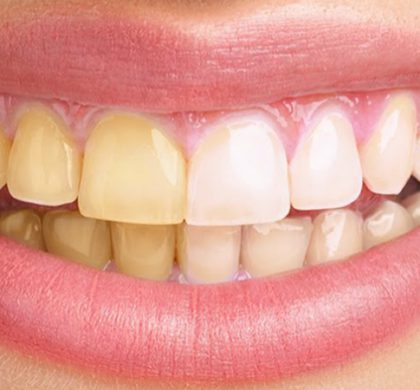 ¿Por qué se ponen los dientes amarillos? Conoce sus causas