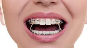cambiar forma de la cara con ortodoncia foto