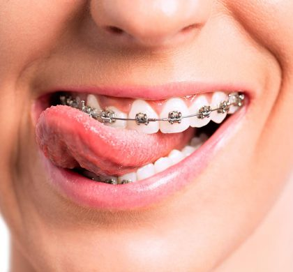 ¿Se puede cambiar la forma de la cara con ortodoncia?