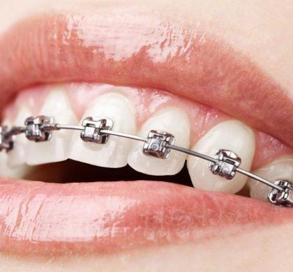 ¿Cómo debo cepillarme los dientes con ortodoncia?