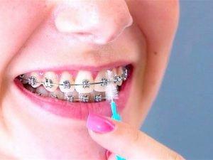 imagen cepillarme los dientes con ortodoncia foto