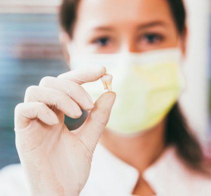 Extracción de dientes con brackets ¿Es posible realizarlas?