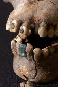 modificaciones dentales imagen