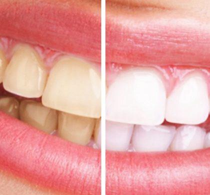 Las 5 sonrisas de los famosos que cambiaron totalmente su cara