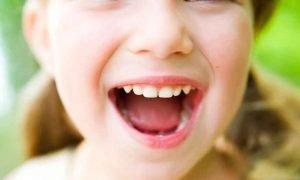 foto mal aliento niños y bebés blog
