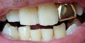materiales para las coronas dentales foto