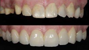 materiales para las coronas dentales foto post