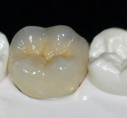 ¿Cuáles son los materiales para las coronas dentales más resistentes?