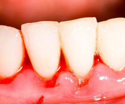 ¿Por qué sangran las encías? Conoce los motivos y cómo evitarlo
