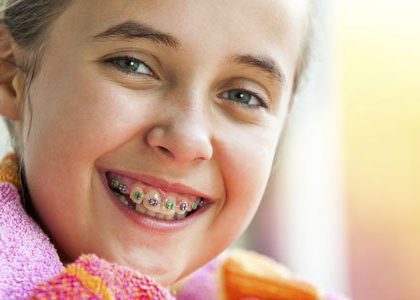 ¿Cuáles son los tipos de ortodoncia para niños?