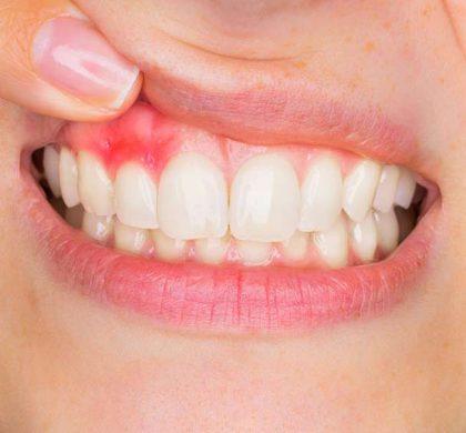 ¿Por qué tengo las encías inflamadas? Motivos y soluciones