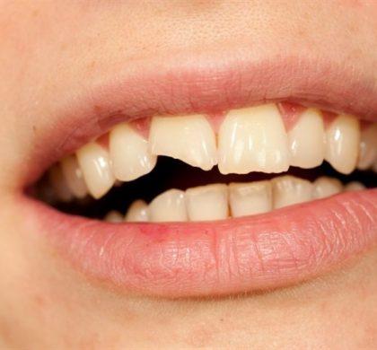 ¿Qué hago si mi hijo se ha roto un diente? Consejos y soluciones