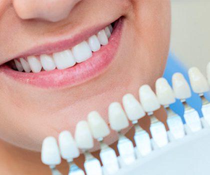 ¿Qué tienes que hacer después de un blanqueamiento dental?