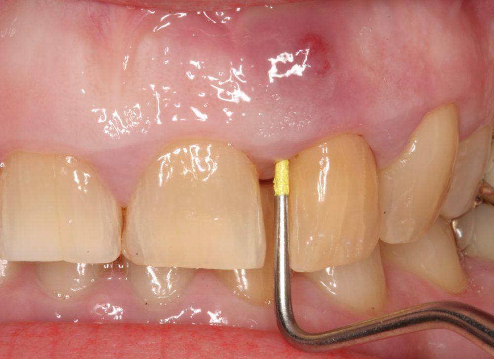 tratamiento endodoncia si tienes un flemón