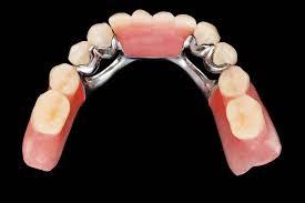 implante o un puente dental imagen