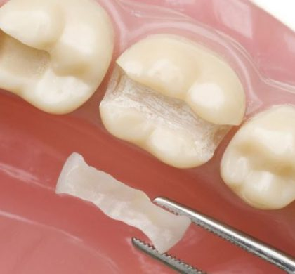 ¿Qué tipos de empastes dentales existen?