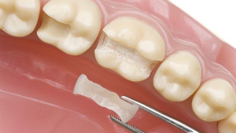 portada tipos de empastes dentales