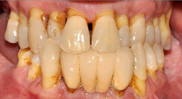 imagen periodontitis