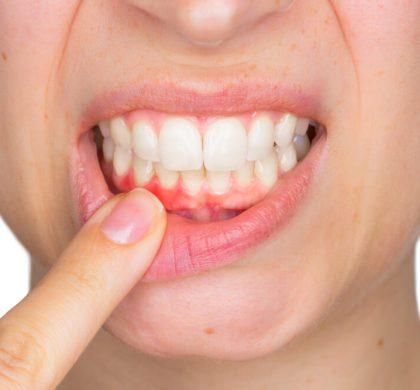 ¿Cómo aliviar el dolor de encías? Maneras de solucionar esta situación
