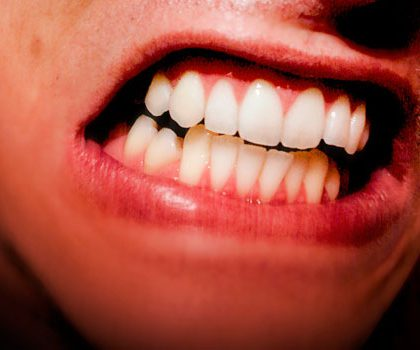 ¿Qué te puede provocar el bruxismo en tu salud dental? Conócelo a fondo