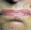 ¿Por qué tienes un sabor metálico en la boca? Te lo explicamos