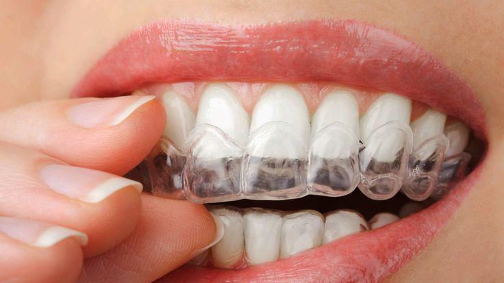 ¿Por qué tienes desgaste dental? Causas y soluciones para tu sonrisa