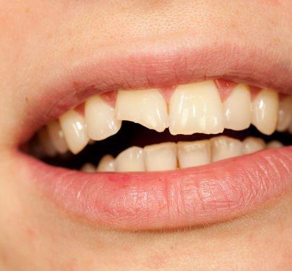 ¿Tienes un diente roto y no sabes qué hacer? Soluciones para tu sonrisa