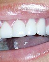 Blanqueamiento dental en casa
