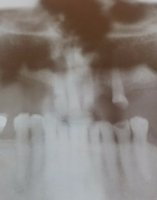 Cirugia dental - Extracción de dientes