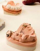 cirugía dental dentista Guadix, Anclaje dental