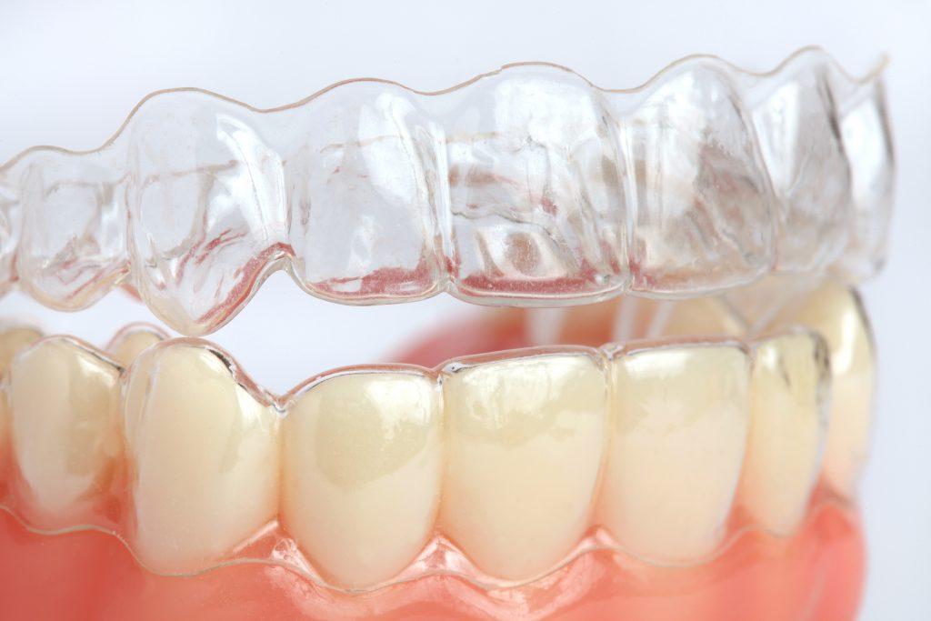 cómo previenen los selladores dentales