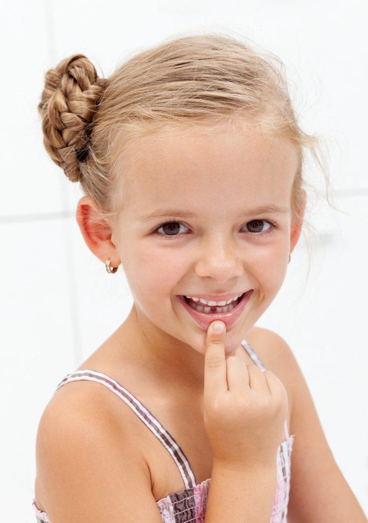 malposiciones dentales en niños