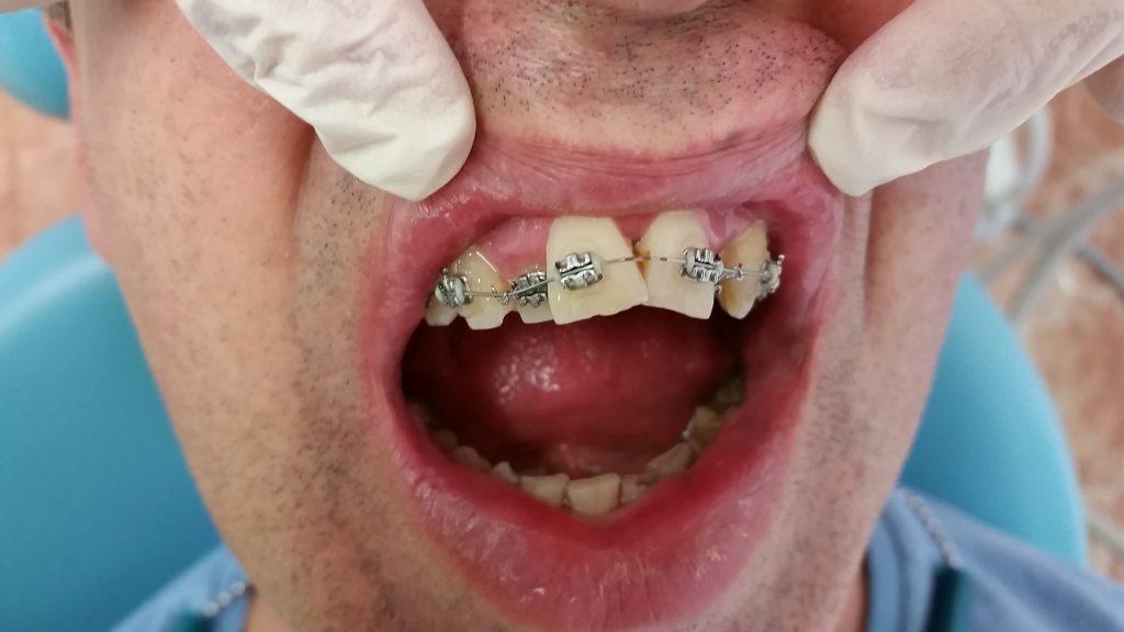 malposiciones dentales